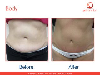 Non Surgical liposuction - before and after