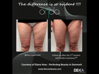 ONDA Coolwaves cellulite reduction before and after result after 2 treatments on womans legs
