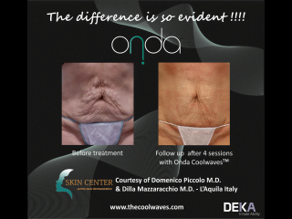 ONDA Coolwaves skin tightening before and after result after 4 treatments on womans stomach