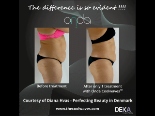 ONDA Coolwaves fat reduction before and after result after 1 treatment on womans stomach