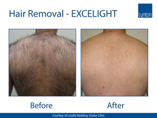 Lynton Lasers EXCELIGHT Hair Removal Before and After Image of a Males Back