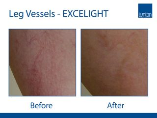 Lynton Lasers EXCELIGHT IPL Before and After Result of Leg Vessels Treatment