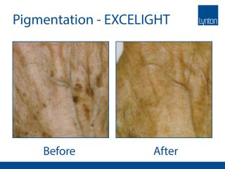 Pigmentation removal by EXCELIGHT IPL Before and After of Pigmentation Treatment on Hands