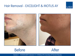 Motus AY and Lynton Lasers EXCELIGHT Hair Removal Before and After Result on Womans Chin