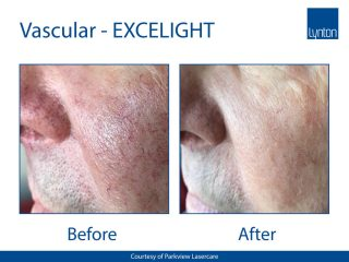 Lynton EXCELIGHT IPL Before and After Result of Facial Vessels Treatment