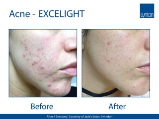 Lynton Lasers EXCELIGHT IPL Before and After Image of Acne Treatment on the Face