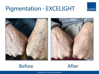Lynton Lasers EXCELIGHT IPL Before and After of Pigmentation Treatment on Hands