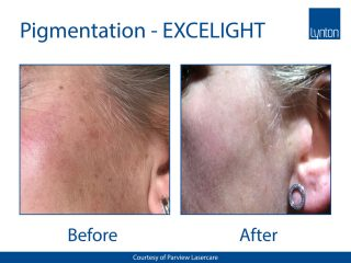 Lynton Lasers EXCELIGHT IPL Before and After Result of Pigmentation Treatment on the Face