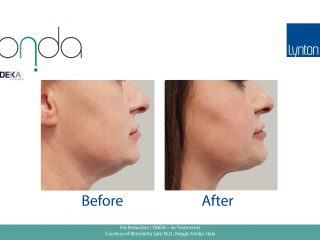 Before and After Fat Reduction Submental Region