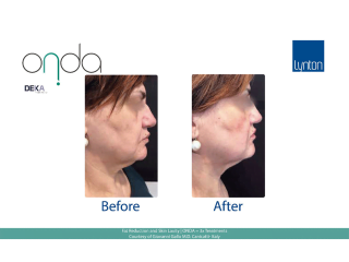 ONDA Coolwaves Fat Reduction Before and After Result After 3 Treatments on Womans Neck and Chin