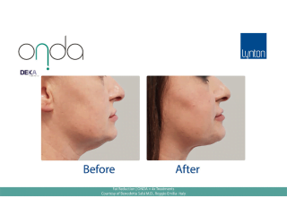 ONDA Coolwaves Fat Reduction Before and After Result After 4 Treatments on Womans Neck and Chin