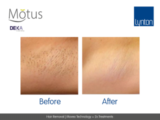 Hair Removal Moveo Technology After 2 Treatments