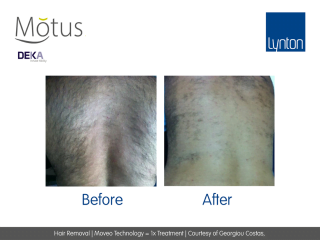 Hair Removal | Moveo Technology = 1x Treatment | Courtesy of Georgiou Costas