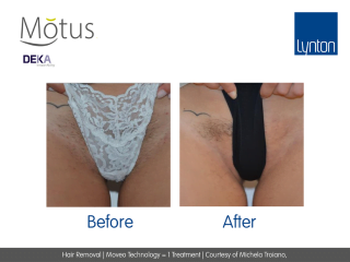 Motus AY Laser Hair Removal with Moveo Technology Before and After One Treatment on Bikini Line