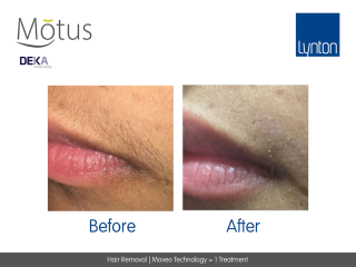 Motus AY Laser Hair Removal with Moveo Technology Before and After One Treatment on Womans Upper Lip