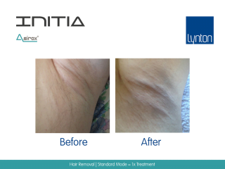 INITIA Diode Laser Hair Removal Before and After Result from One Treatment on Armpit