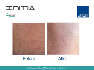 INITIA Diode Laser Hair Removal Before and After Result from One Treatment