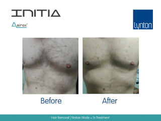 INITIA Diode Laser Hair Removal Before and After Result from One Treatment on Male Chest