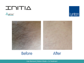 INITIA Diode Laser Hair Removal Before and After Result from Two Treatments