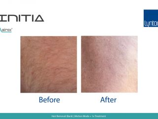 INITIA Diode Laser Hair Removal Before and After Result on Armpit
