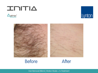 Laser Hair Removal Before and After Result on Bikini Line with INITIA Diode
