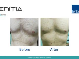 Hair Removal Before and After Result on Chest with INITIA Diode Laser