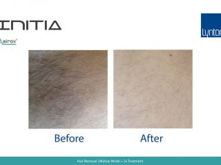 Hair Removal Before and After Results with the INITIA Diode on Armpit