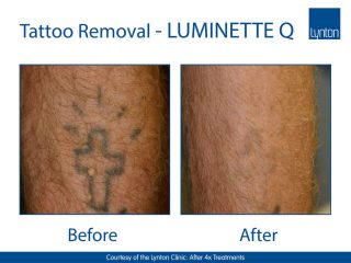 Lynton Lasers Luminette Q Tattoo Removal Laser Before and After Result on Arm