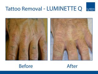 Lynton Lasers Luminette Q Tattoo Removal Laser Before and After Result on Hand