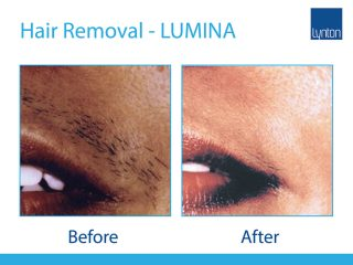 Lynton Lasers LUMINA Hair Removal Before and After Result on Upper Lip