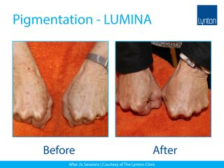 Lynton Lasers LUMINA Pigmentation Treatment Before and After Result