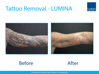 Lynton Lasers LUMINA Laser Tattoo Removal Before and After Result