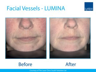 Lynton Lasers LUMINA Vascular Treatment Before and After Result