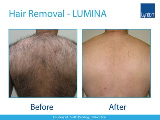 Lynton LUMINA Hair Removal Before and After Result on Male Back