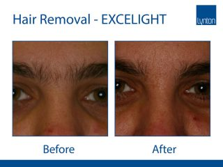 Lynton Lasers EXCELIGHT IPL Hair Removal Before and After Results on Eyebrow