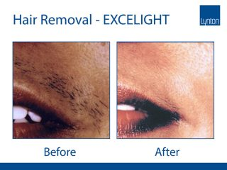Lynton Lasers EXCELIGHT IPL Hair Removal Before and After Results on Lip