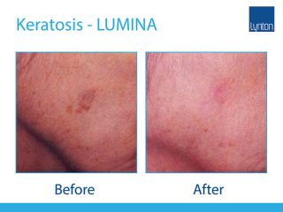 Lynton Lasers LUMINA Keratosis Treatment Before and After Result