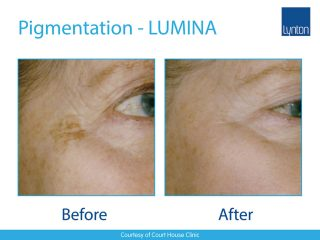 Lynton Lasers LUMINA Pigmentation Treatment Before and After Result on Face