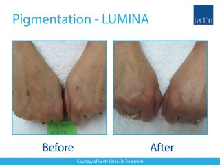 LUMINA Pigmentation Treatment Before and After Result on Hands