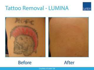LUMINA Laser Tattoo Removal Before and After Result