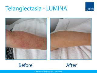 Lynton Lasers LUMINA Telangiectasia Treatment Before and After Result