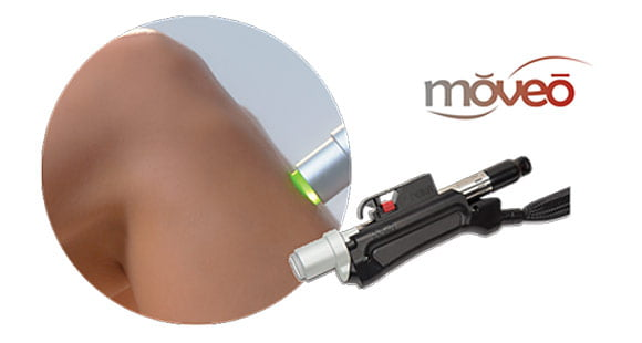 Moveo Pain Free Hair Removal Motus AY