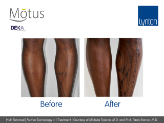 Motus Laser Hair Removal with Moveo Technology Before and After One Treatment on Legs