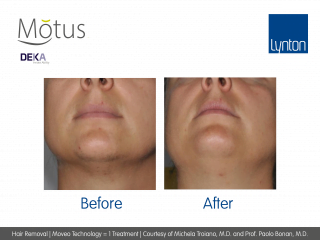 Motus AY Laser Hair Removal with Moveo Technology Before and After One Treatment on Womans Chin