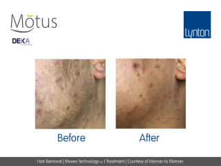 Motus AY Laser Hair Removal with Moveo Technology Before and After Treatment on Womans Face