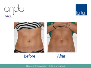 ONDA Coolwaves Before and After Result of Woman Abdominal After 4 Treatments