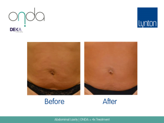 ONDA Coolwaves Before and After Result of Skin Tightening on Woman Abdominal After 4 Treatments
