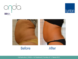ONDA Coolwaves Fat Reduction Treatment Before and After Result on Woman Stomach
