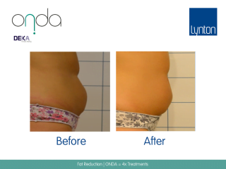 ONDA Coolwaves Fat Reduction Before and After Result After 4 Treatments on Woman Abdoman