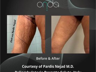 Onda Before and After Skin Tightening Treatment on Leg